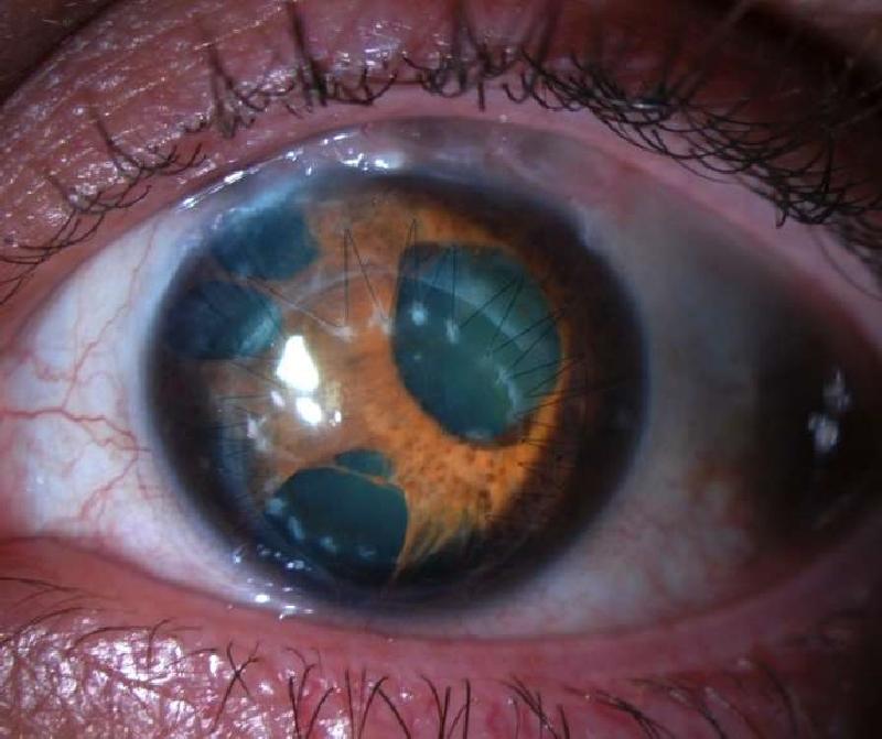 India's first siRNA drug to treat rare eye disease soon ...