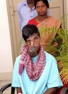 Manikandan, the patient